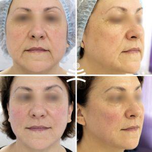 Комплексная косметологическая коррекция лица